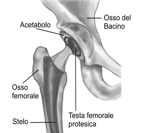 protesi anca Roma