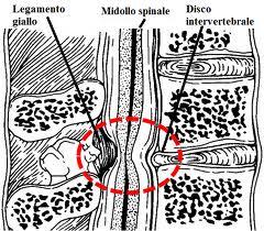 Stenosi vertebrale Roma